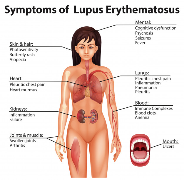 Symptoms of Lupus Erythematosus