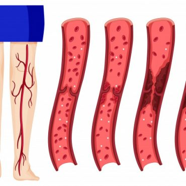 Thromboprophylaxis in COVID-19